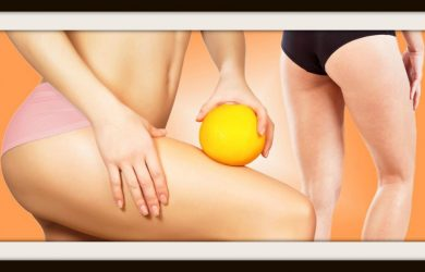 Carbossiterapia contro cellulite e smagliature