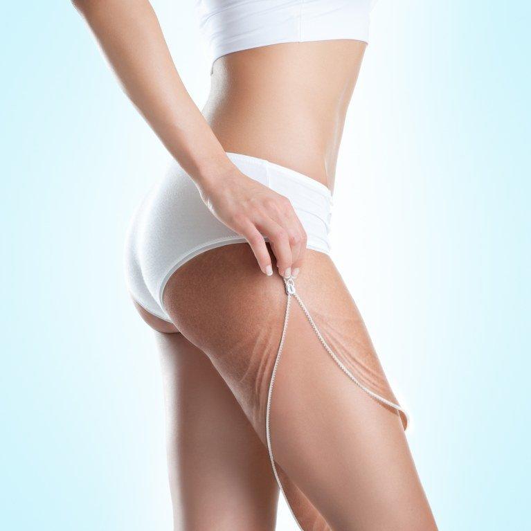 cellulite e smagliature rimedi efficaci